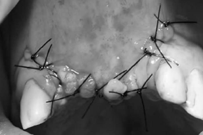 Osteotomia Sagital da Crista com Enxerto Interposicional - relato de caso clínico