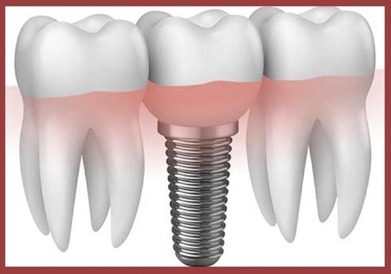 Curso de Prótese sobre Implante - Montando nova turma